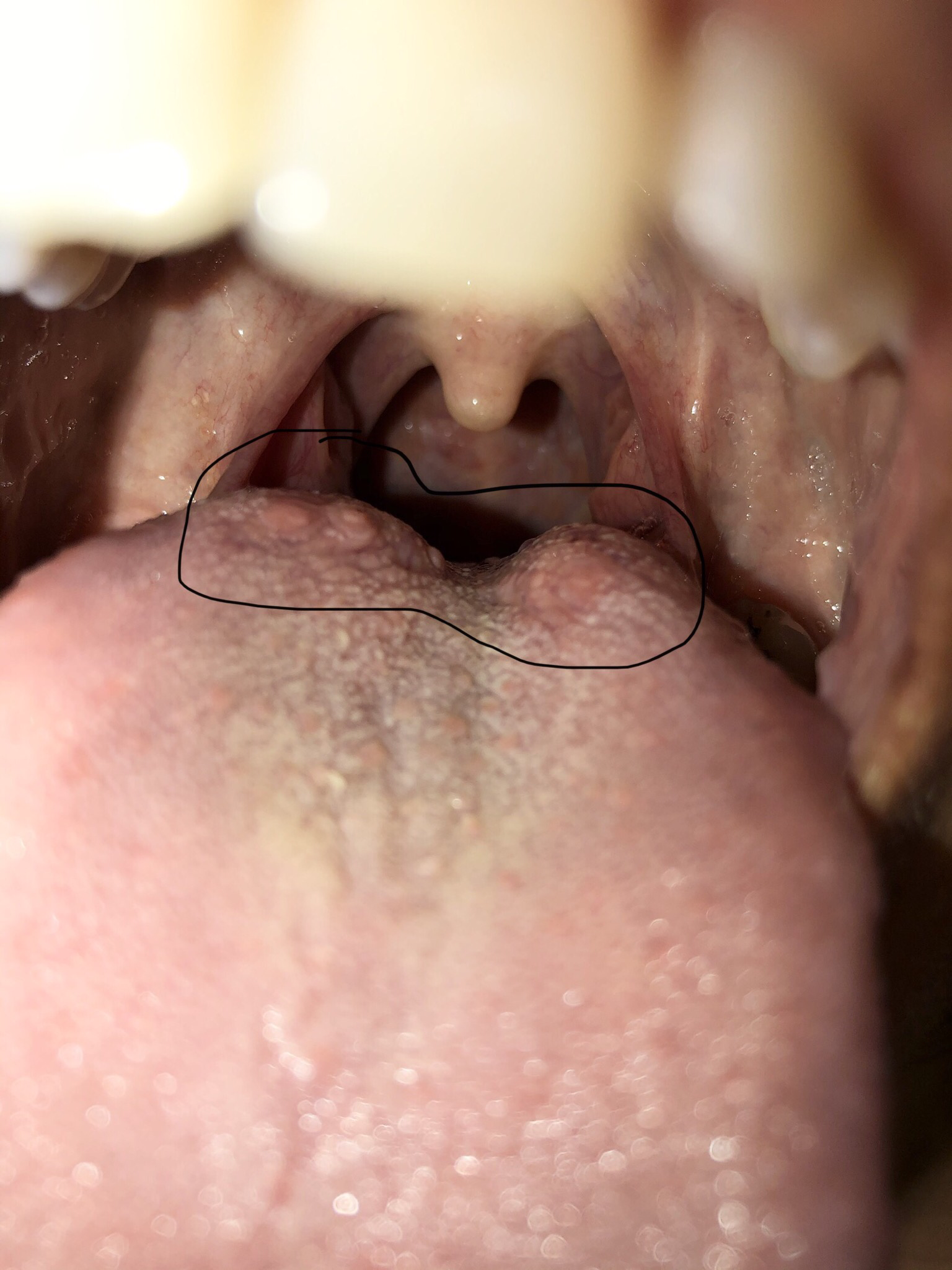 hpv warts back of tongue human papillomavirus infection occurrence