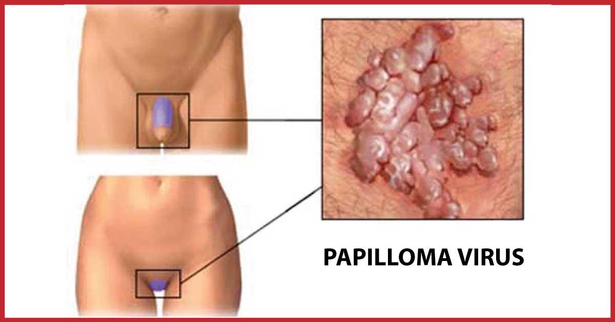 papilloma virus porta bruciore condilom plat al biopsiei colului uterin
