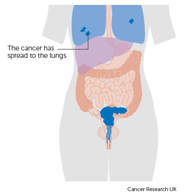 Aggressive cancer in bladder, Aggressive cancer meaning - csrb.ro