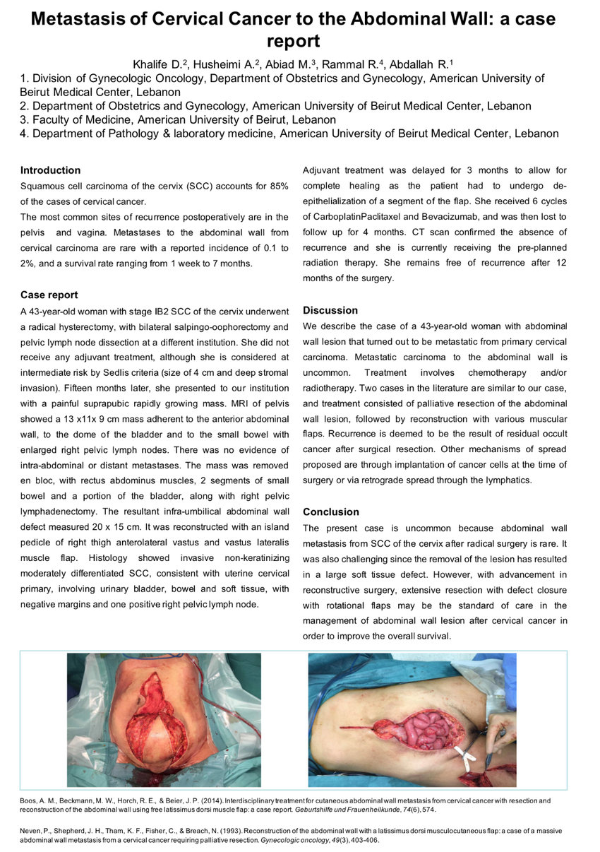Peritoneal cancer with ascites Ascites cancer peritoneal
