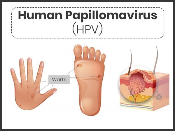 human papillomavirus infection vs genital warts