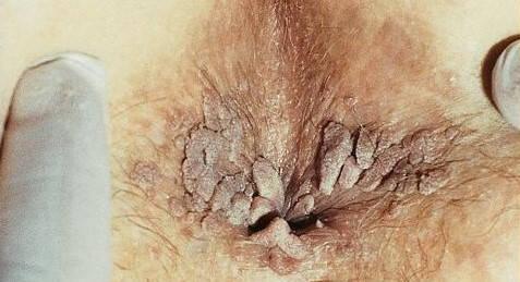negi lângă anus
