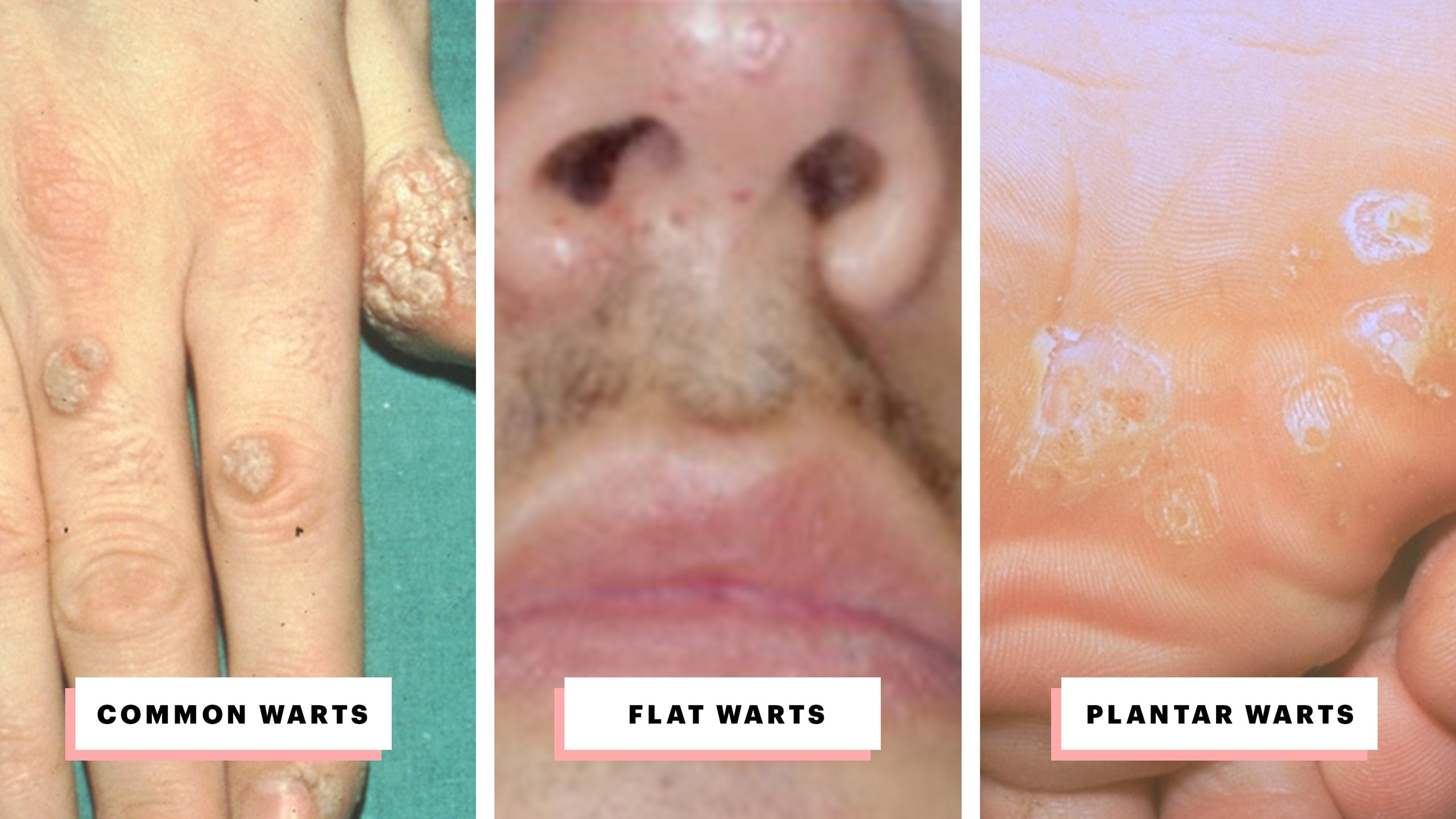 Hpv treatment before and after, Venereal Wart (Condyloma acuminata)