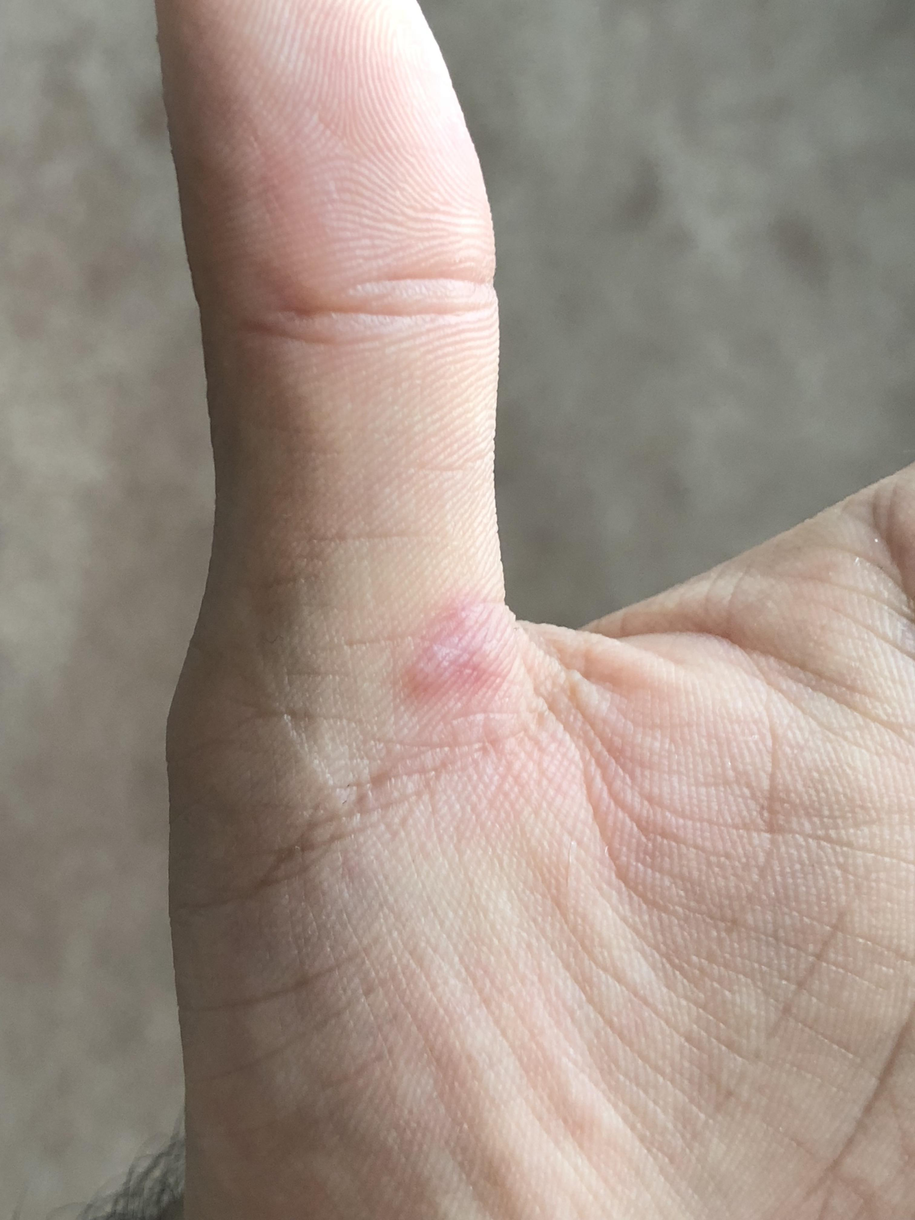 Do warts on hands itch