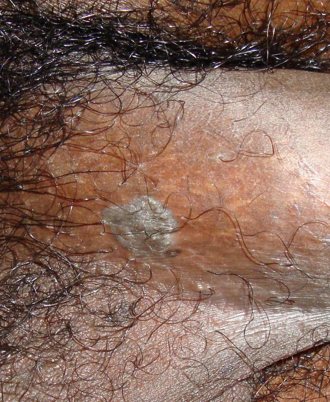 condyloma acuminata male
