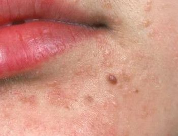Hpv and face warts. Hpv causes warts on face, Articole recomandate