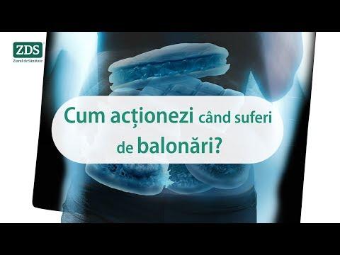 paraziti dr. clark papilom inflamat pe gât ce să facă