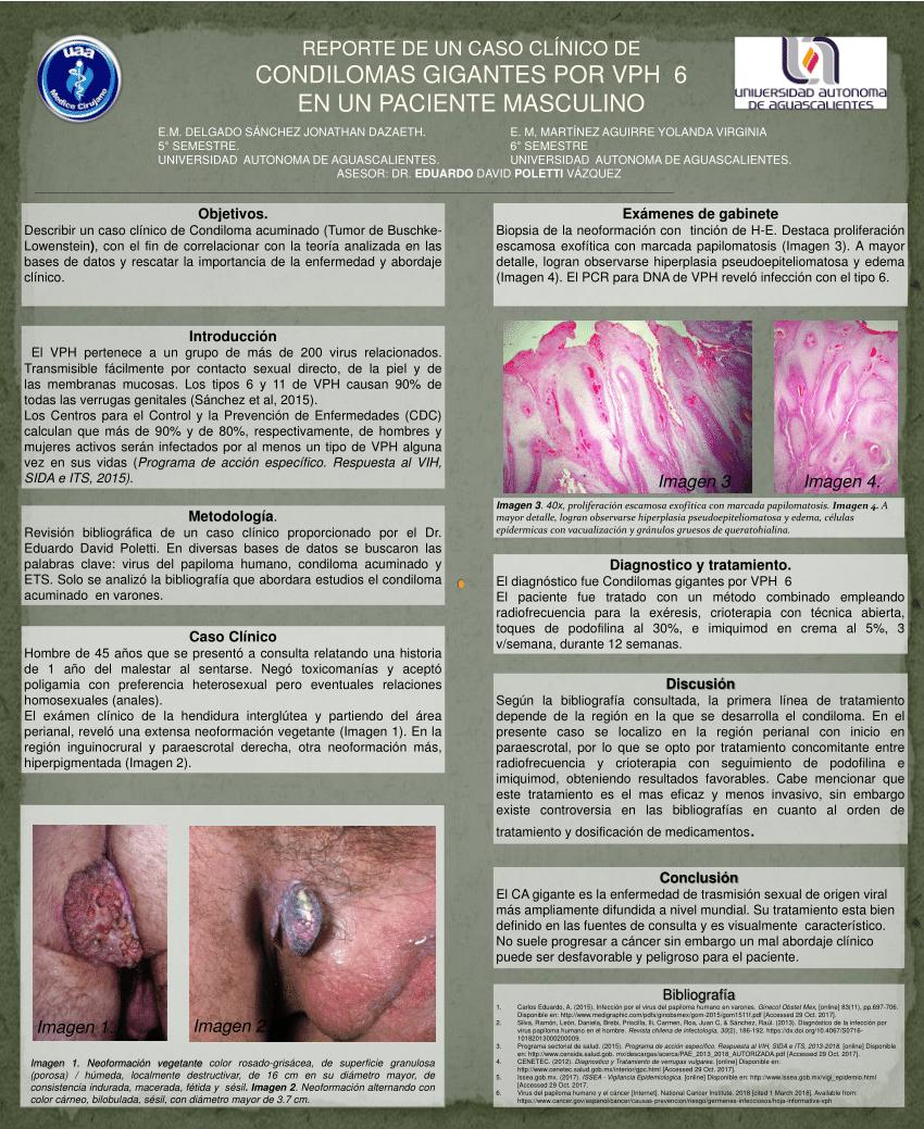 virus papiloma condiloma acuminado wart foot cause