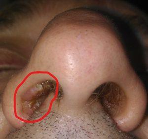 Squamous papilloma of nasal vestibule