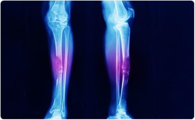 sarcoma cancer on leg