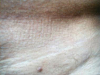 condilomul vaginal este