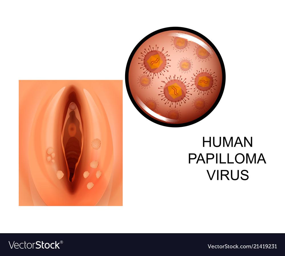 papilloma virus what is it de ce apar papiloame pe ochi