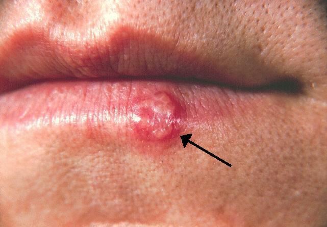 hpv y herpes