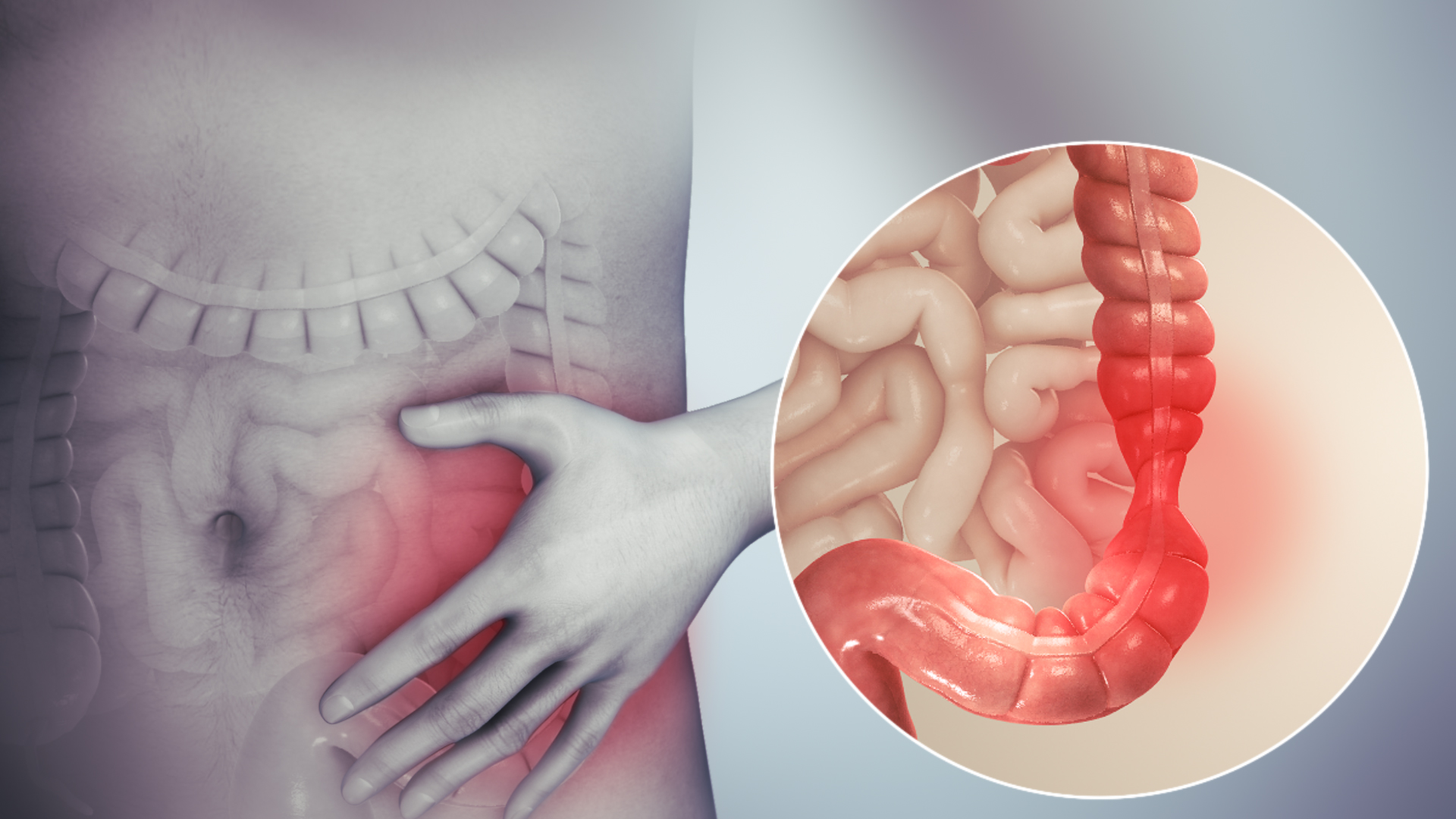 sistemul nervos al viermei detoxifiere dieta