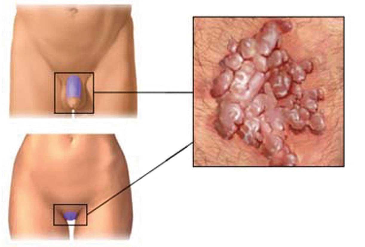 papilloma virus hpv uomo