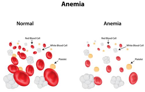 Anemia feriprivă: cauze, simptome, tratament