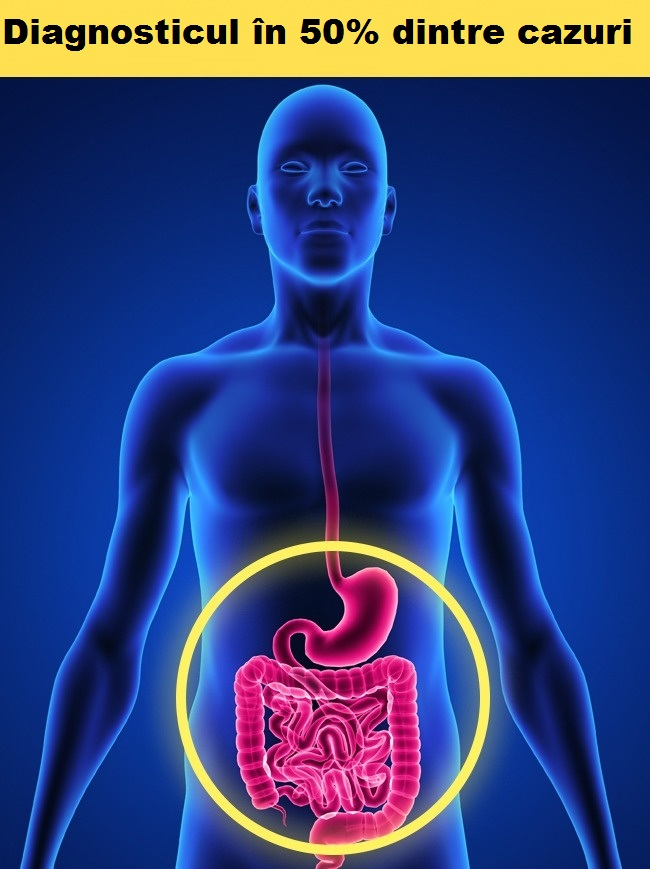 Atacul de cord scade. Atacul de Cord – Simptome, factori de risc si metode de diagnostic