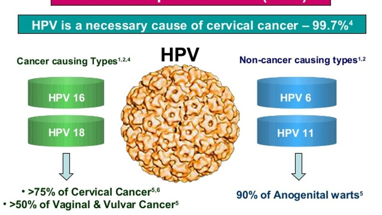 Infecţia cu virusul HPV şi riscul de cancer - Cancer