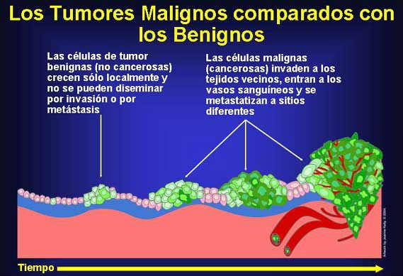 el papiloma es benigno o maligno