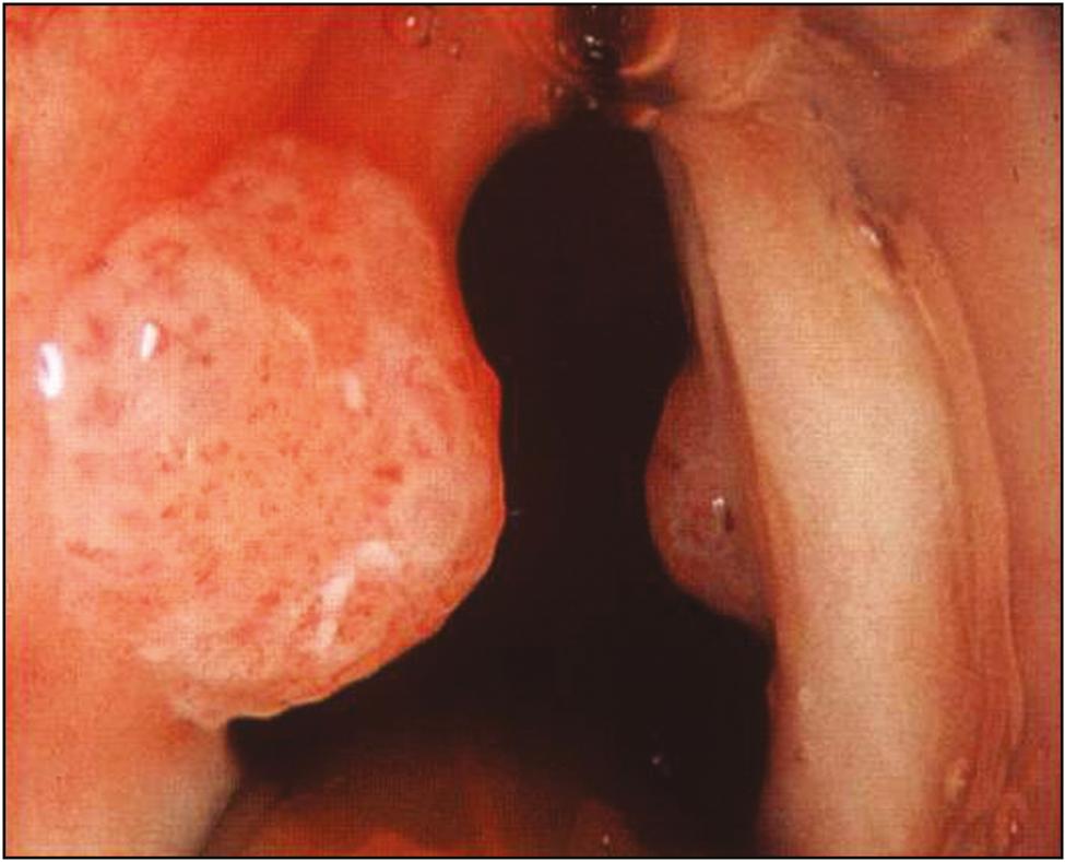 paediatric laryngeal papilloma