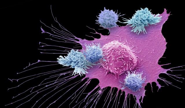 neuroendocrine cancer and immunotherapy ka iedarbojas helmintox