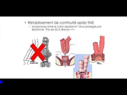 Cancerul limbii | csrb.ro