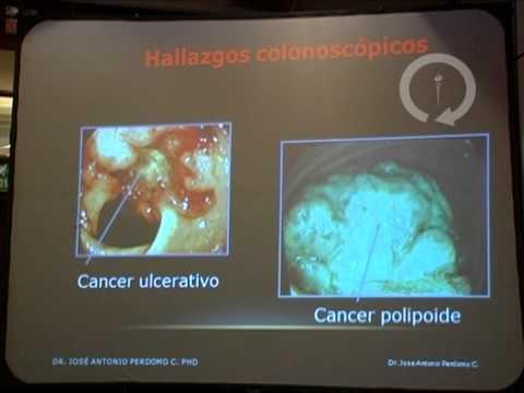cancer de colon y ganglios afectados