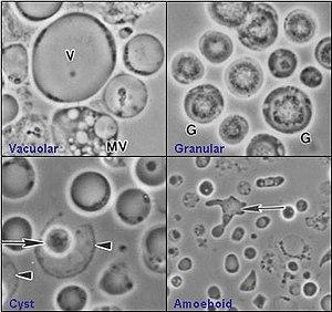 blastocystis hominis paraziti nedir