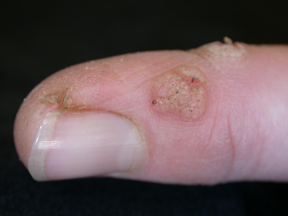 warts treatment hands
