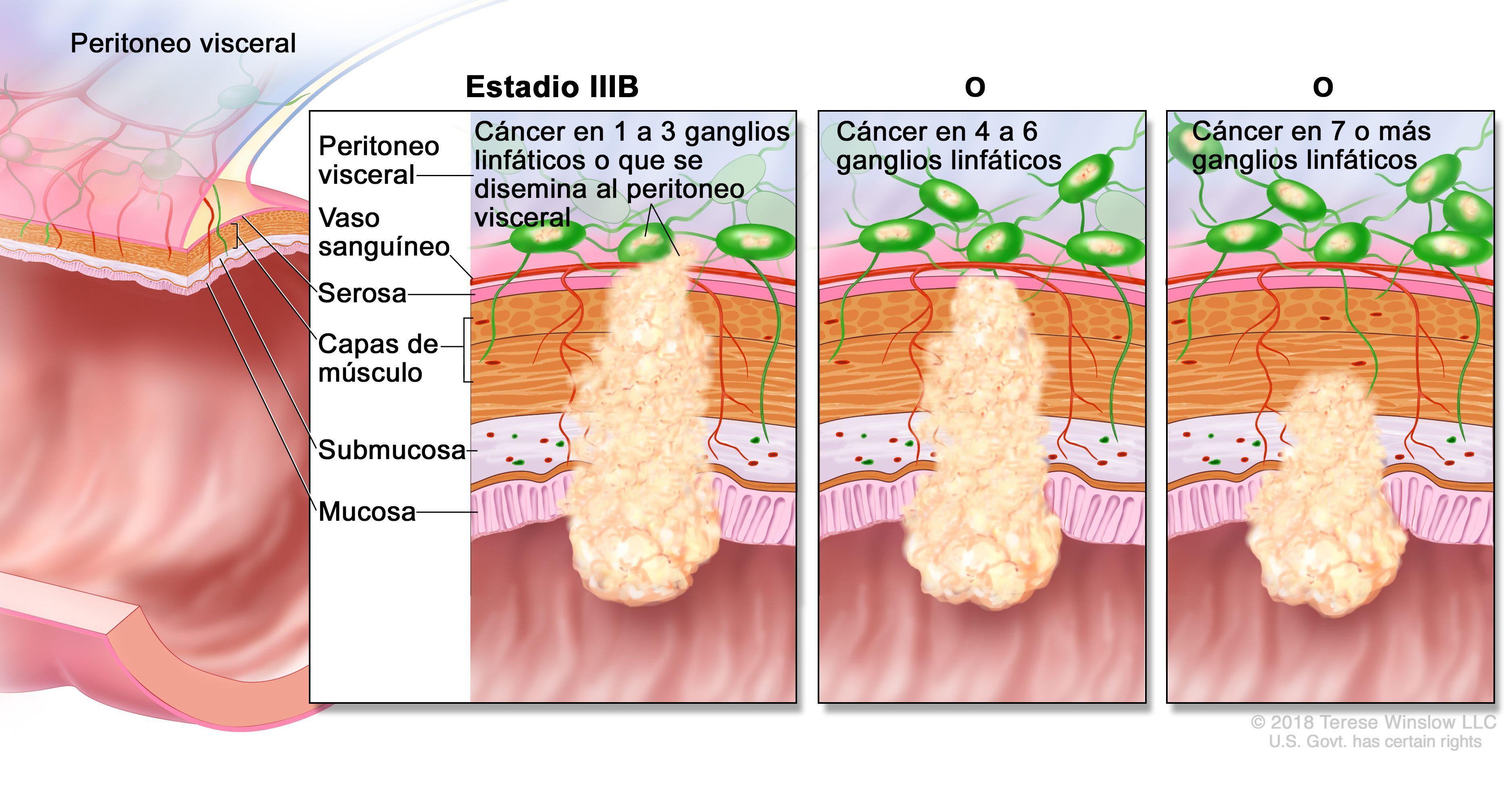 cancer de colon nivel 4 pastile pentru paraziți în bilă