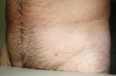 Verucile genitale (negi genitali, condiloame acuminate)