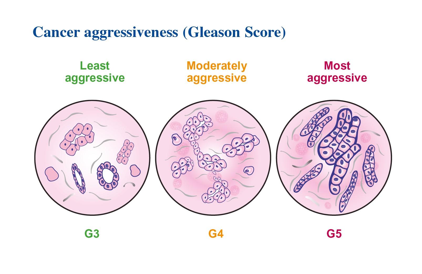 cancer most aggressive treatment ce e cancerul limfatic