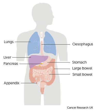 Cromogranina A – marker pentru tumorile neuroendocrine - Cancer