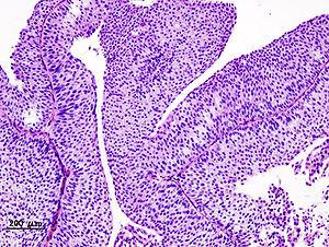 Papilloma urothelial cancer - csrb.ro