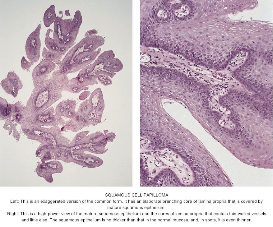 Squamous papilloma esophagus histology Squamous papilloma of the esophagus
