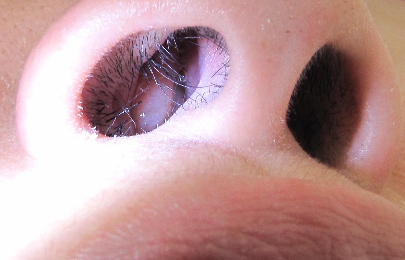 papilloma in nostril