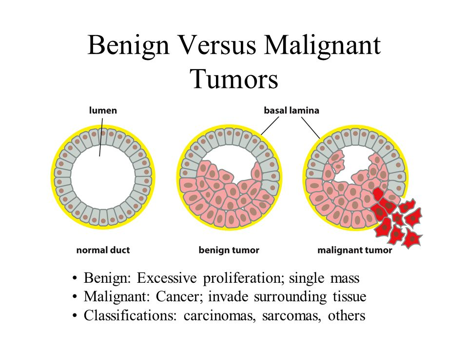 cancer benign versus malignant