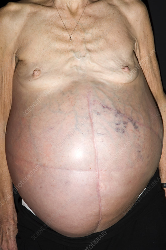 Abdominal distension rectal cancer. Colon cancer abdominal bloating