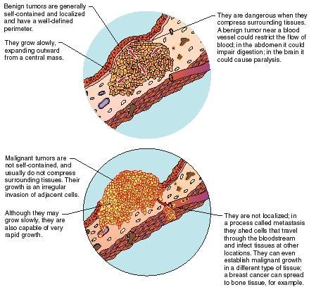 cancer from benign cum să tratăm papilomele la bărbați