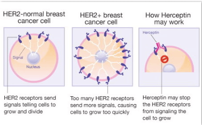 cancer mamar her2 pozitiv