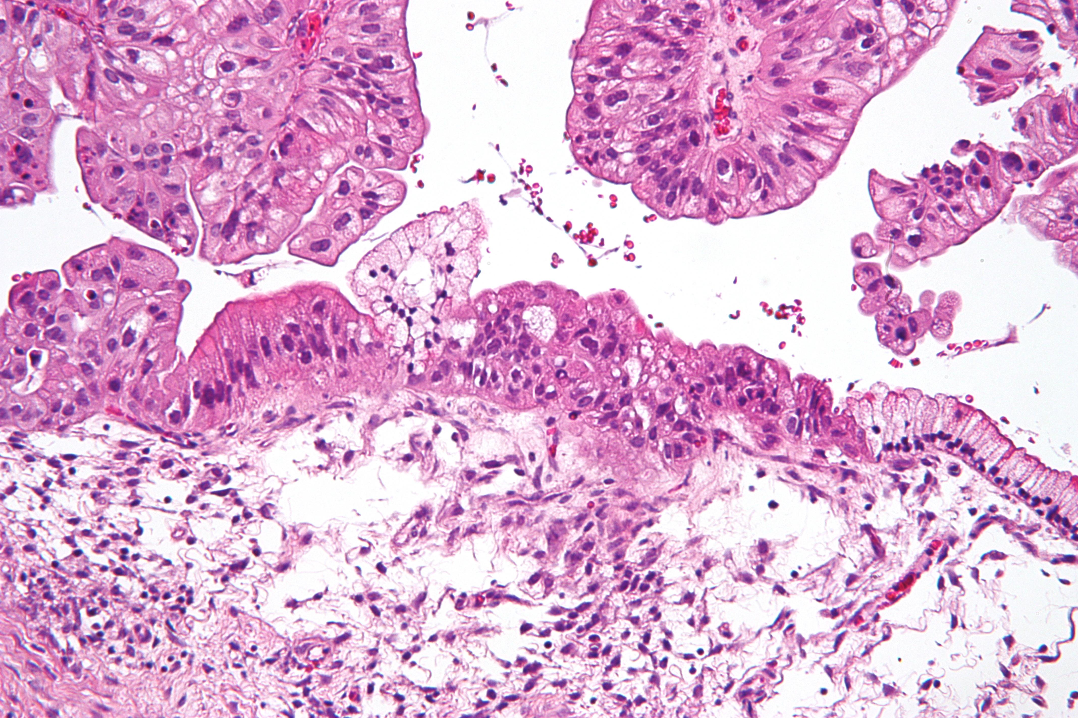 Tumorile mamare maligne