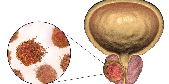cancer prostata rata supravietuire