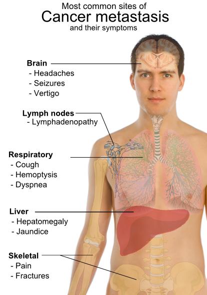 Cancerul de stomac – depistat adesea in stadii avansate | csrb.ro