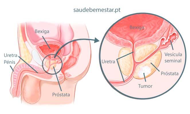 cancer uretra sintomas