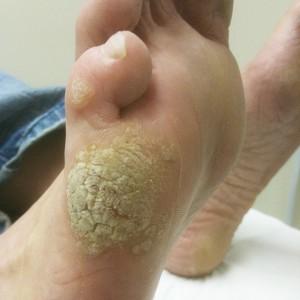 Papilloma warts treatment