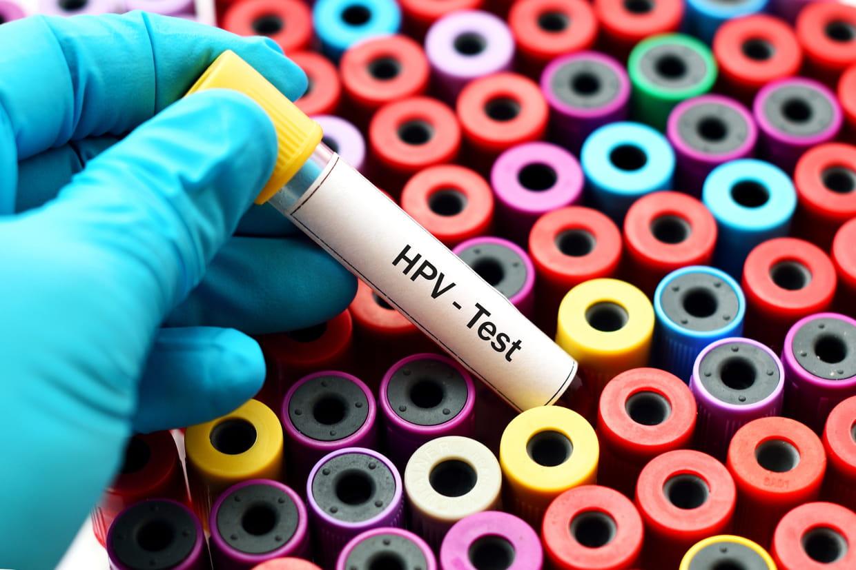 Comment detecter papillomavirus chez lhomme. Como eliminar oxiuros en bebes