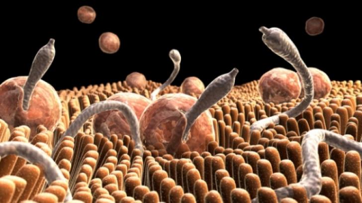 cum să elimini viermii la un adolescent vierme sub gunoiul de piele