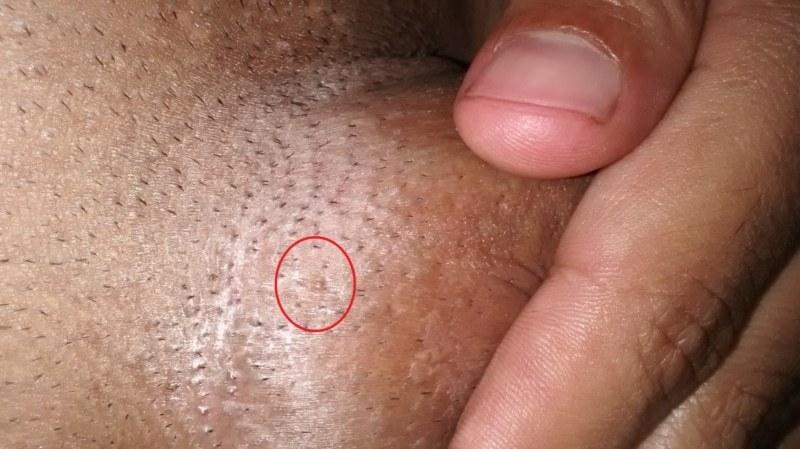 cum se identifică verucile genitale la bărbați