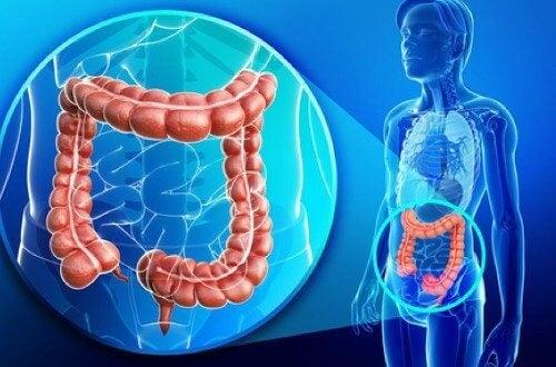 Sorbitol curățare intestinală - un remediu universal