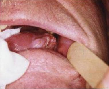 aggressive cancer of the tongue
